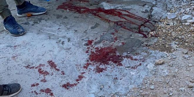 בן 45 נפצע מירי בכפר נחף, מצבו בינוני