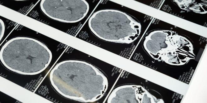 """יום המודעות הבינ""""ל לשבץ מוחי: """"קורונה ושבץ מוחי? עד כה, לא נמצא קשר ברור"""""""